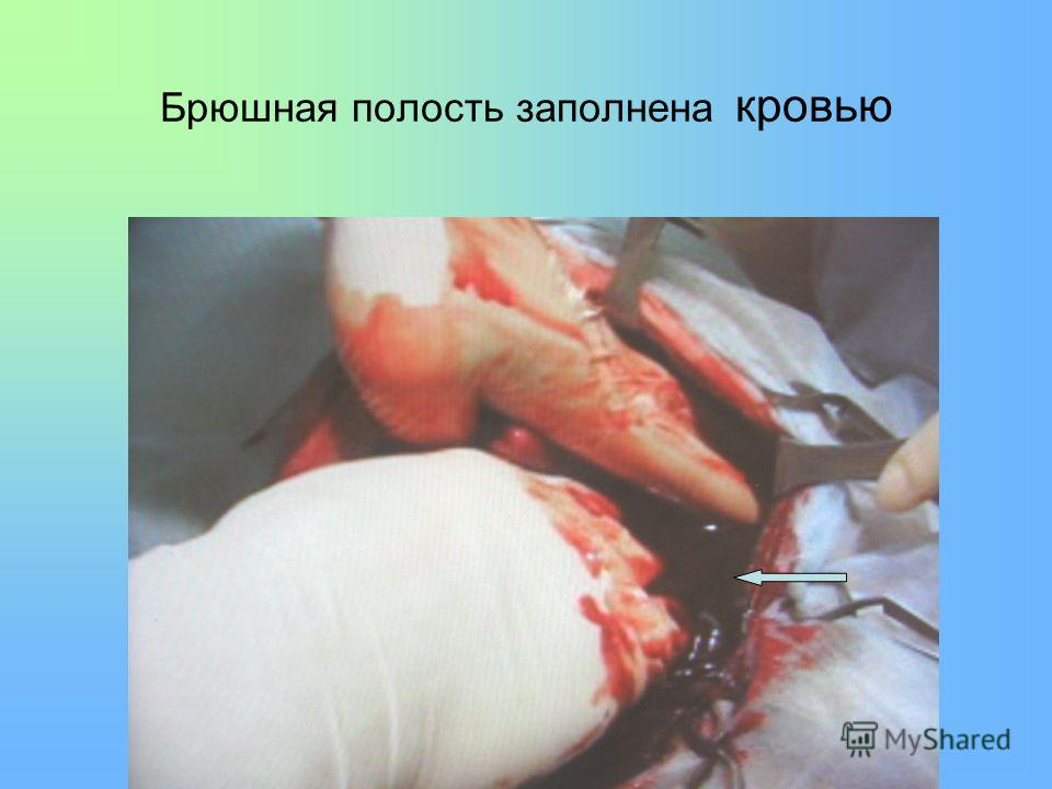 Брюшная полость заполнена кровью