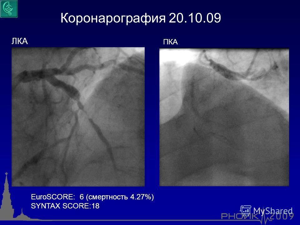 Коронарография 20.10.09 ЛКА ПКА EuroSCORE: 6 (смертность 4.27%) SYNTAX SCORE:18