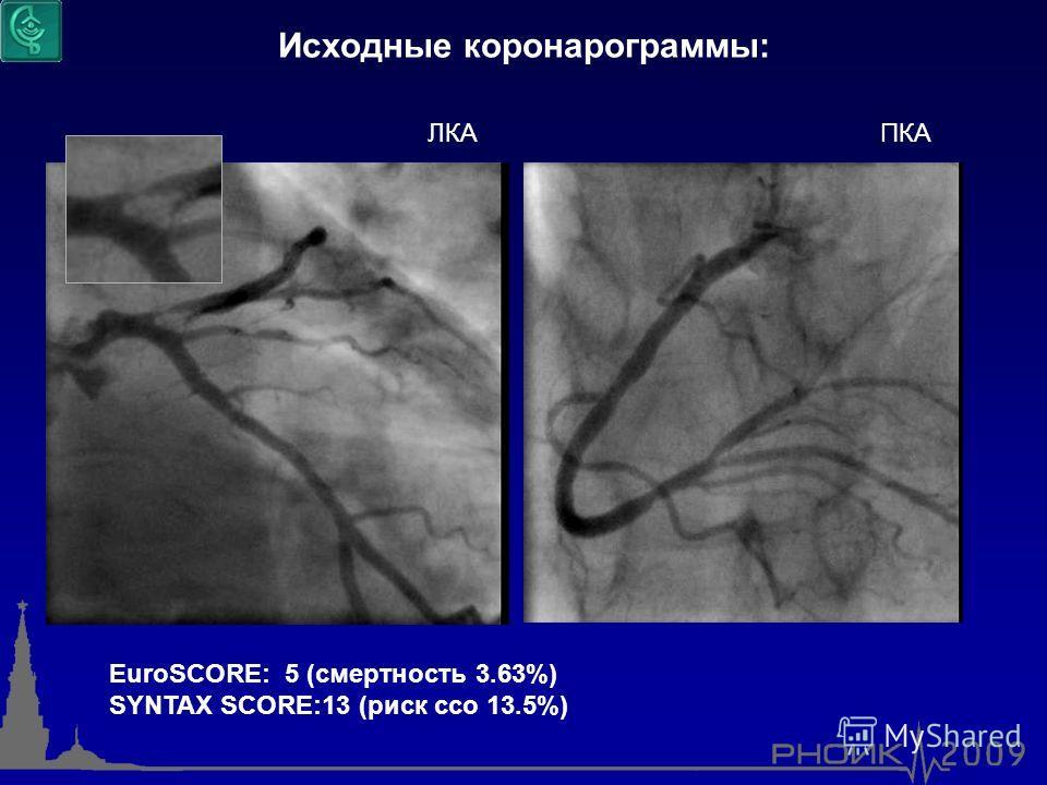 Исходные коронарограммы: ЛКА ПКА EuroSCORE: 5 (смертность 3.63%) SYNTAX SCORE:13 (риск ссо 13.5%)