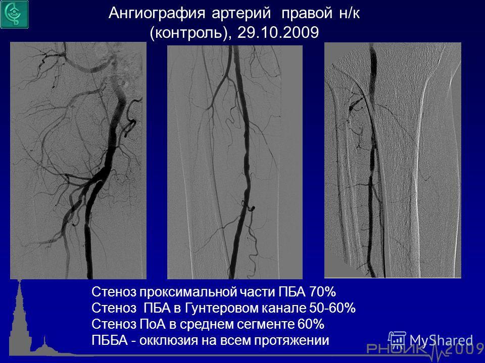 Ангиография артерий правой н/к (контроль), 29.10.2009 Стеноз проксимальной части ПБА 70% Стеноз ПБА в Гунтеровом канале 50-60% Стеноз ПоА в среднем сегменте 60% ПББА - окклюзия на всем протяжении