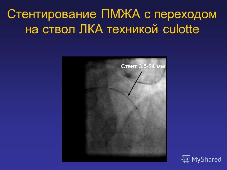 Стентирование ПМЖА с переходом на ствол ЛКА техникой culotte Стент 3.5-24 мм
