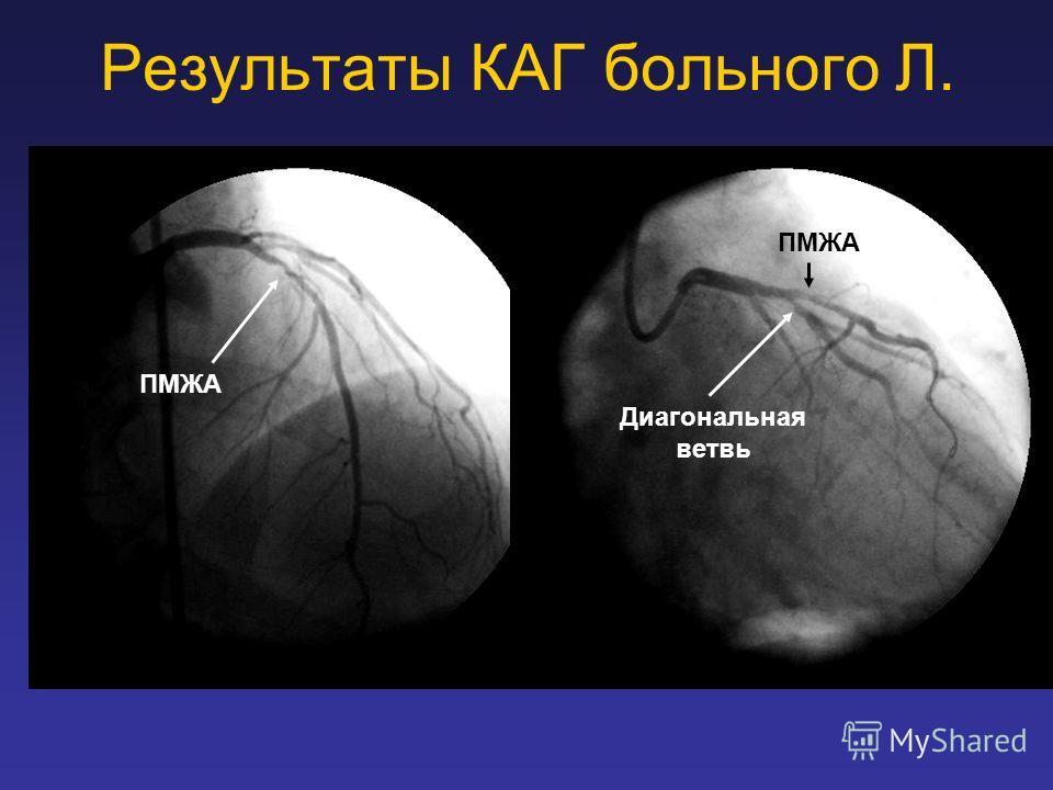 Результаты КАГ больного Л. ПМЖА Диагональная ветвь