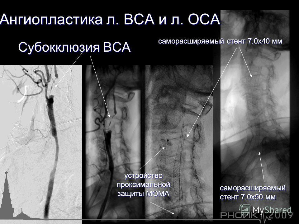 Субокклюзия ВСА Ангиопластика л. ВСА и л. ОСА саморасширяемый стент 7.0х40 мм саморасширяемый стент 7.0х50 мм устройство проксимальной защиты МОМА