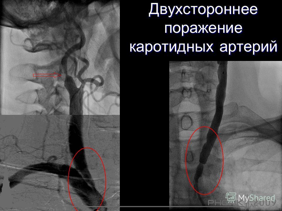 Двухстороннее поражение каротидных артерий