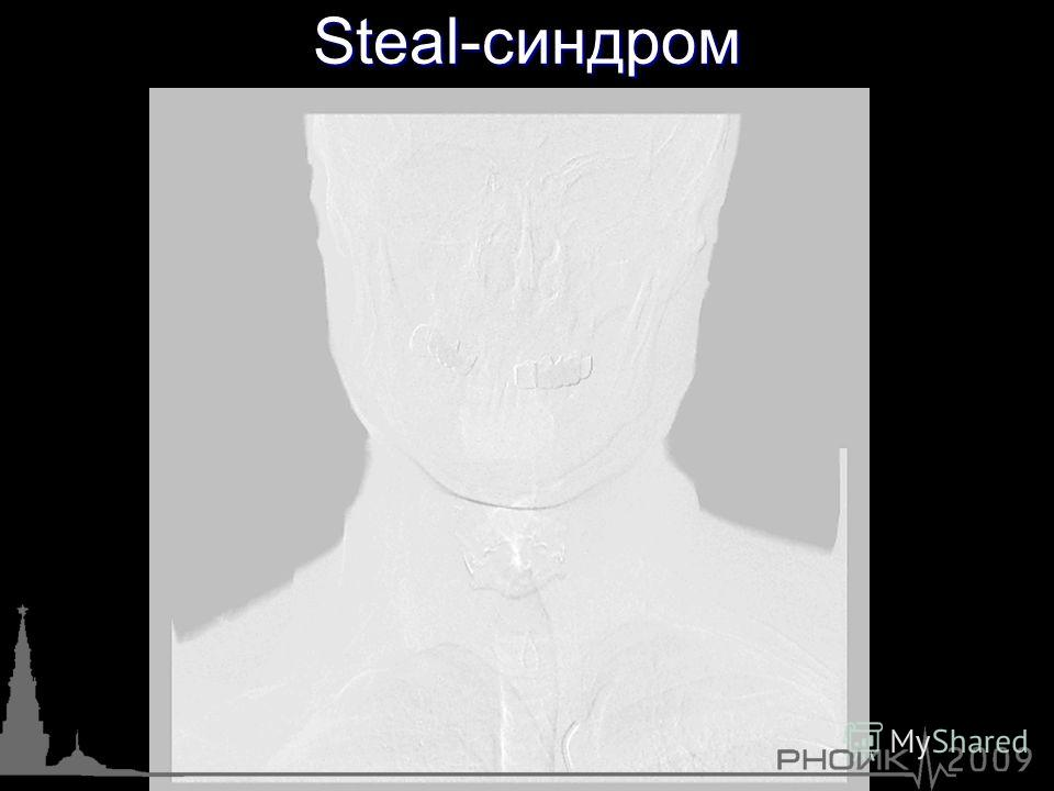 Steal-синдром