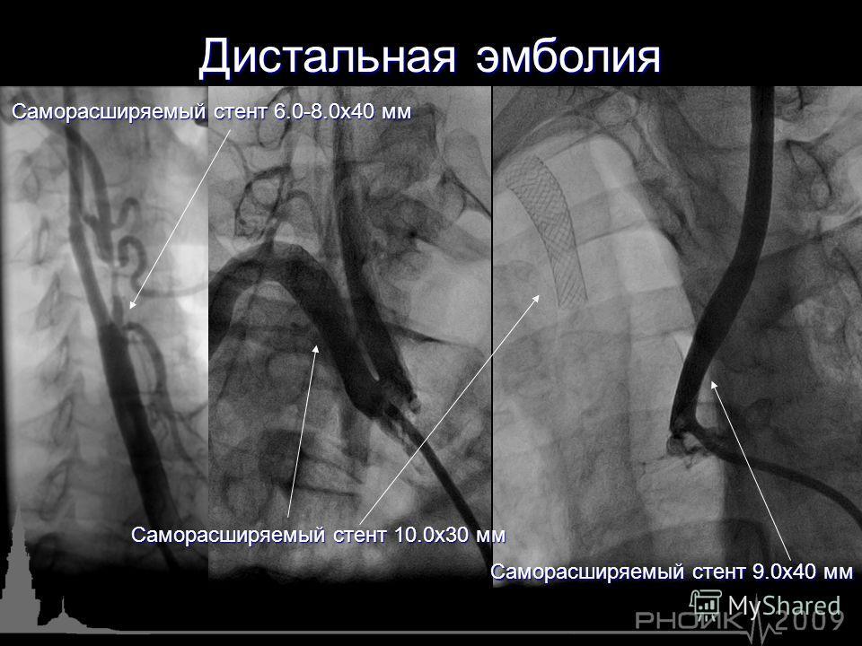 Саморасширяемый стент 10.0х30 мм Саморасширяемый стент 6.0-8.0х40 мм Саморасширяемый стент 9.0х40 мм Дистальная эмболия