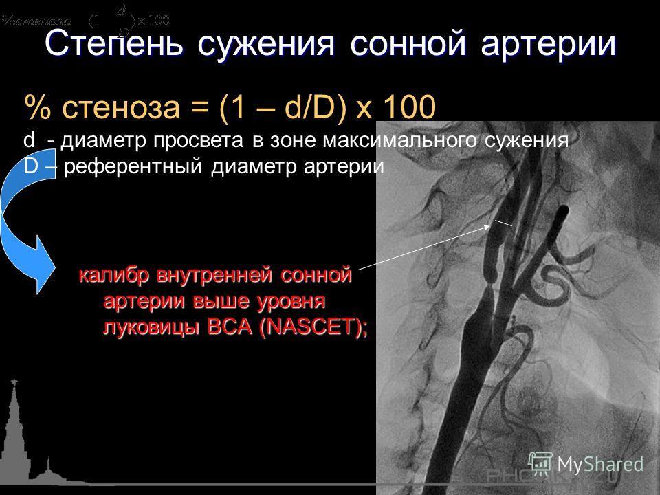 Степень сужения сонной артерии % стеноза = (1 – d/D) х 100 d - диаметр просвета в зоне максимального сужения D – референтный диаметр артерии калибр внутренней сонной артерии выше уровня луковицы ВСА (NASCET);