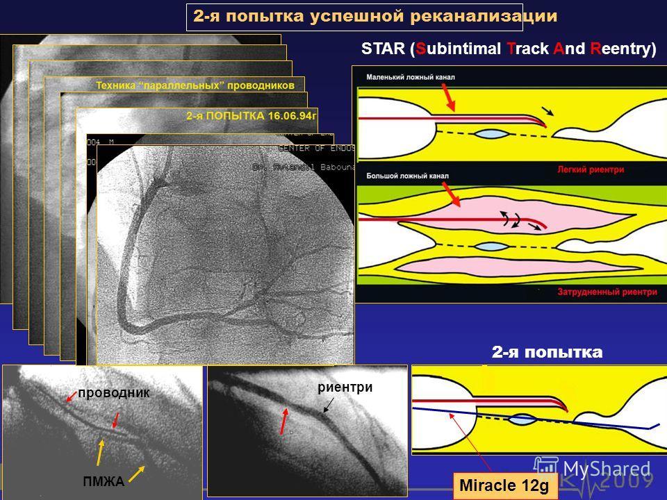 2-я попытка успешной реканализации STAR (Subintimal Track And Reentry) проводник ПМЖА риентри 2-я попытка Miracle 12g