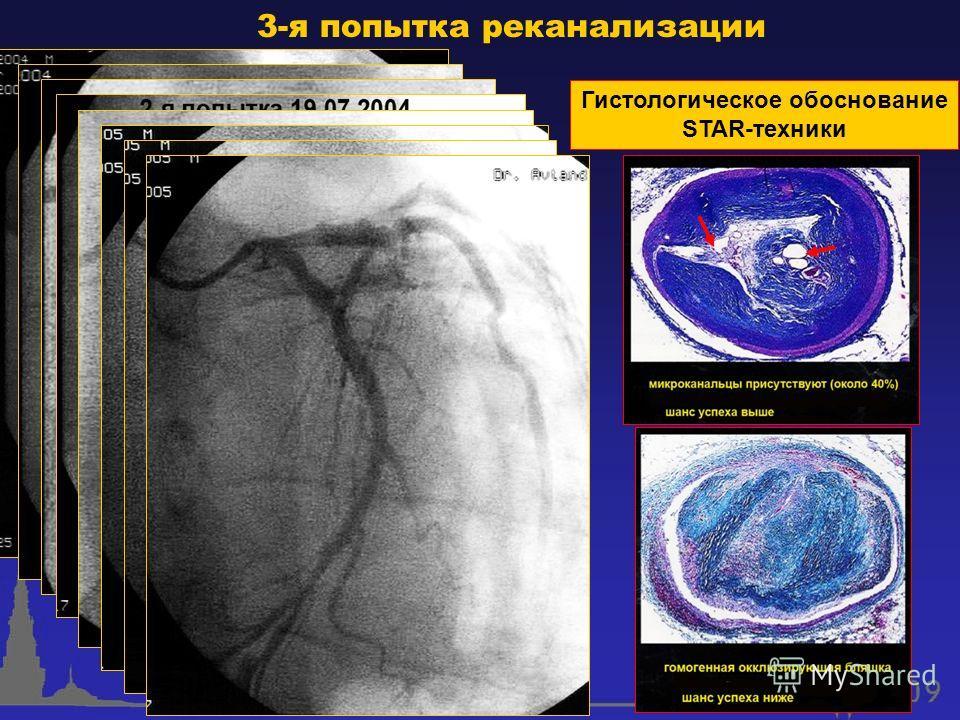 3-я попытка реканализации Гистологическое обоснование STAR-техники