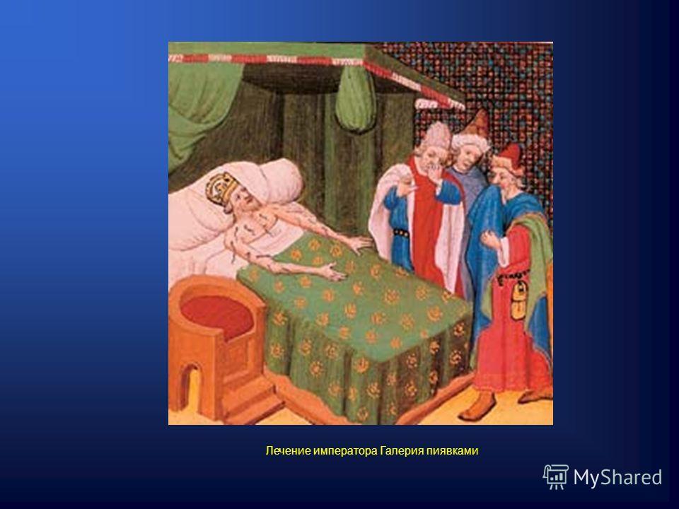 Лечение императора Галерия пиявками