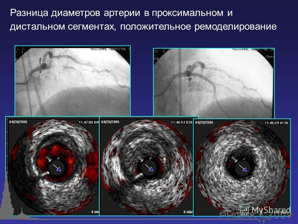 Разница диаметров артерии в проксимальном и дистальном сегментах, положительное ремоделирование.
