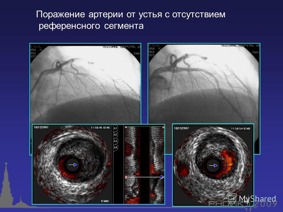 Поражение артерии от устья с отсутствием референсного сегмента