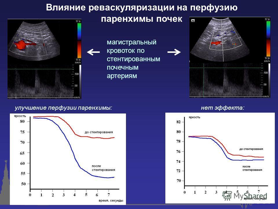 Влияние реваскуляризации на перфузию паренхимы почек улучшение перфузии паренхимы:нет эффекта: магистральный кровоток по стентированным почечным артериям