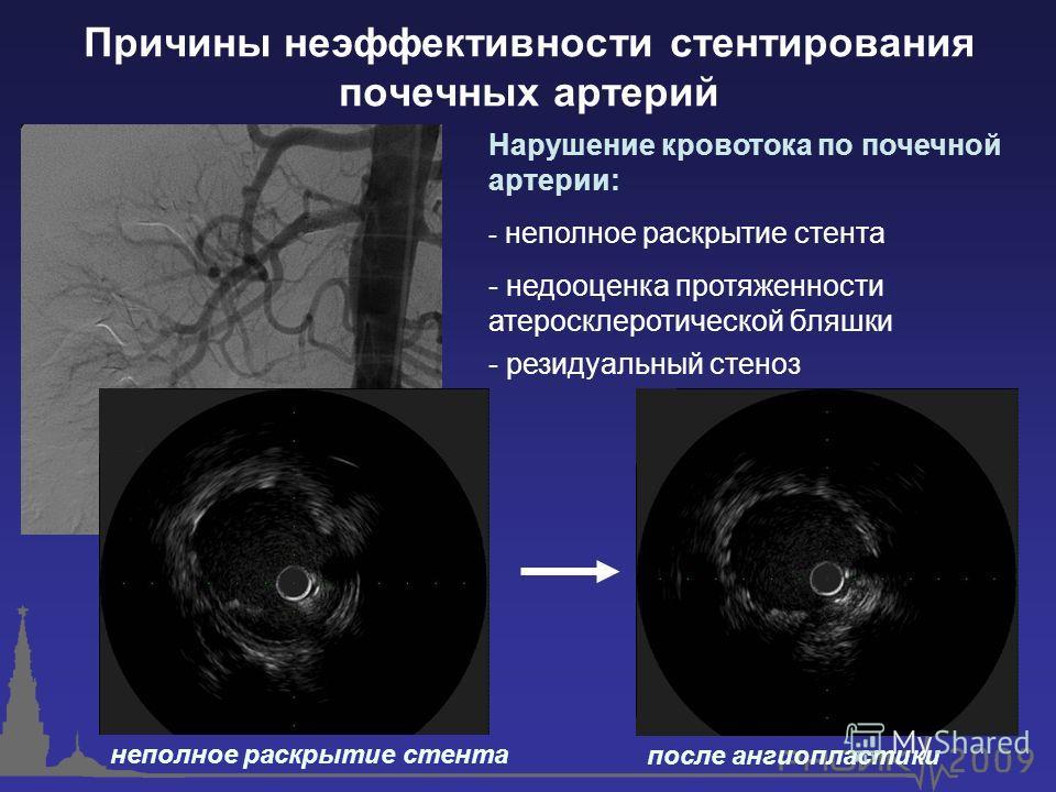 Причины неэффективности стентирования почечных артерий неполное раскрытие стента после ангиопластики Нарушение кровотока по почечной артерии: - неполное раскрытие стента - недооценка протяженности атеросклеротической бляшки - резидуальный стеноз