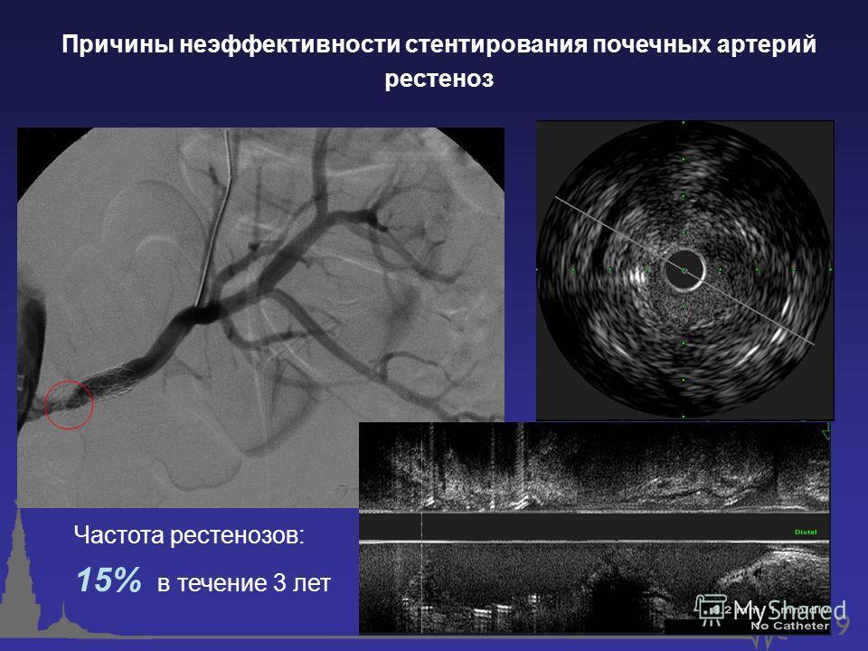 Причины неэффективности стентирования почечных артерий рестеноз Частота рестенозов: 15% в течение 3 лет
