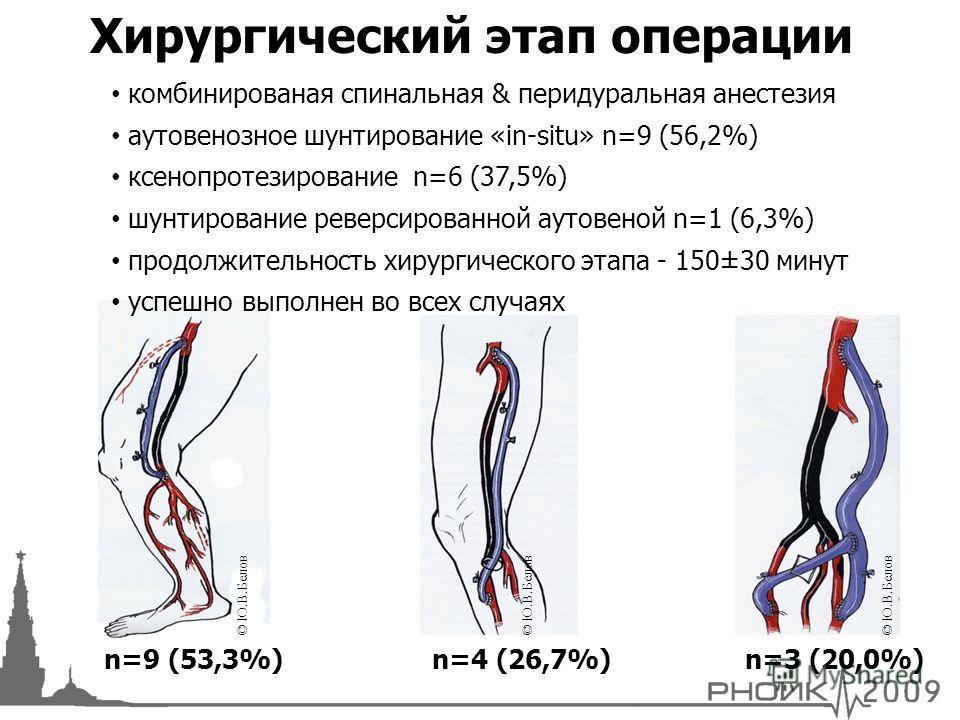 Хирургический этап операции n=9 (53,3%)n=3 (20,0%)n=4 (26,7%) комбинированая спинальная & перидуральная анестезия аутовенозное шунтирование «in-situ» n=9 (56,2%) ксенопротезирование n=6 (37,5%) шунтирование реверсированной аутовеной n=1 (6,3%) продол