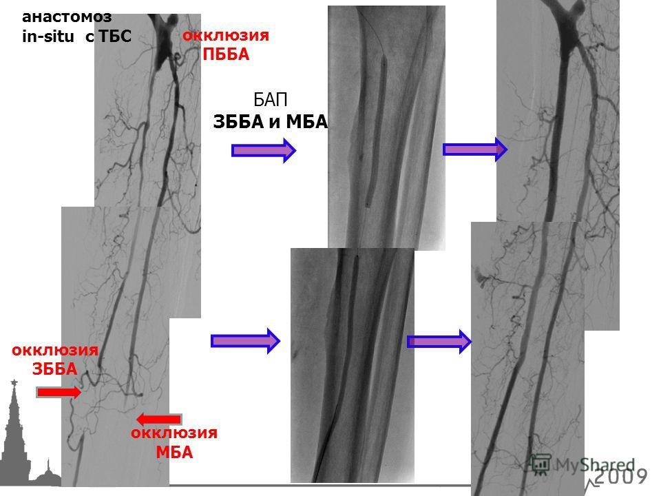 БАП ЗББА и МБА анастомоз in-situ с ТБС окклюзия ЗББА окклюзия МБА окклюзия ПББА