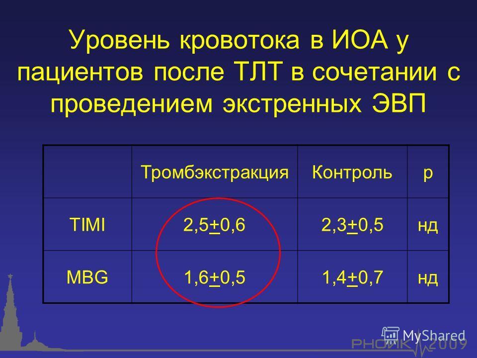 Уровень кровотока в ИОА у пациентов после ТЛТ в сочетании с проведением экстренных ЭВП ТромбэкстракцияКонтрольp TIMI2,5+0,62,3+0,5нд MBG1,6+0,51,4+0,7нд