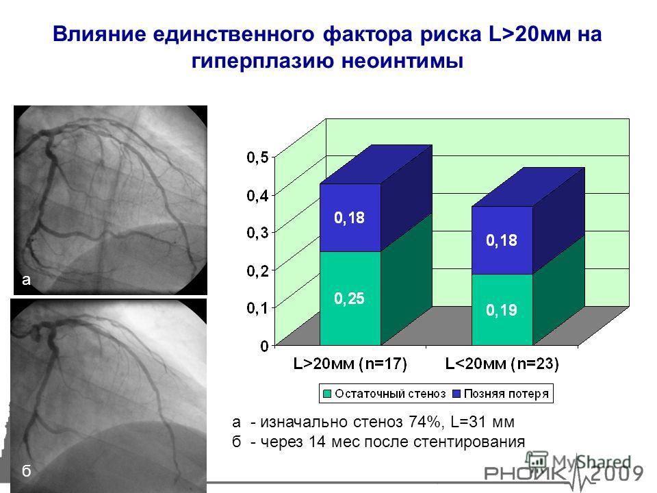 7 Влияние единственного фактора риска L>20мм на гиперплазию неоинтимы а б а - изначально стеноз 74%, L=31 мм б - через 14 мес после стентирования