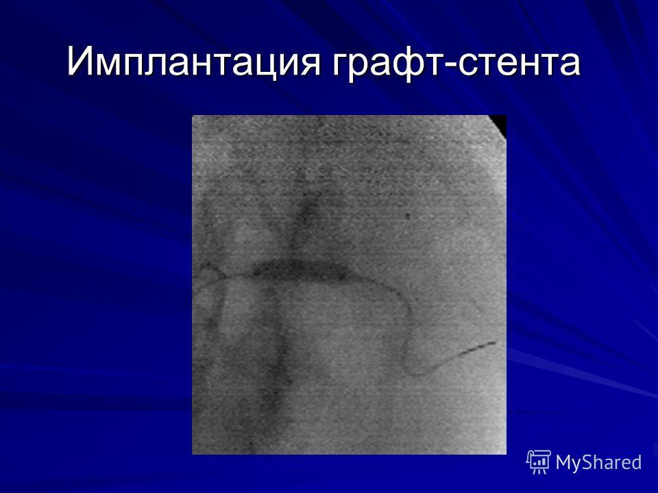 Имплантация графт-стента