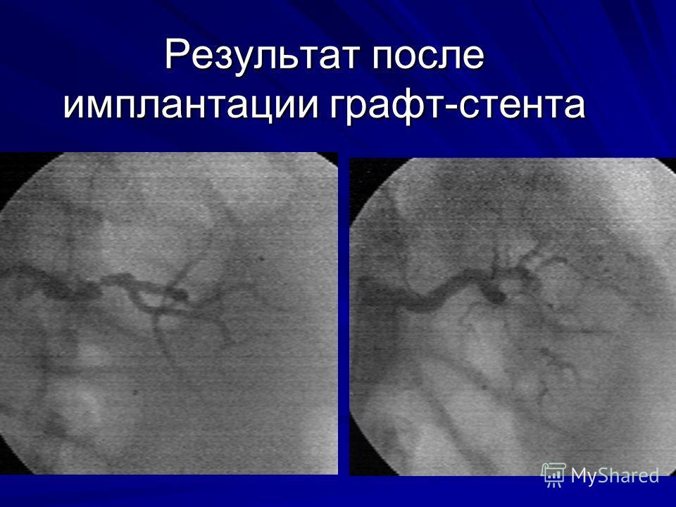 Результат после имплантации графт-стента