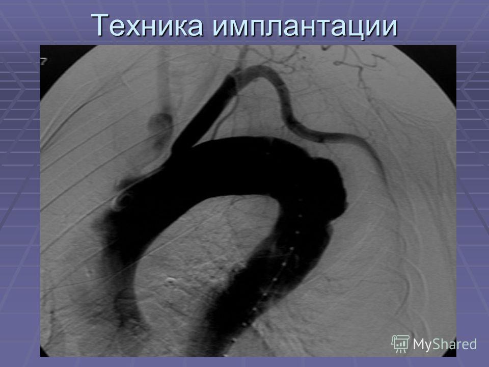 Техника имплантации