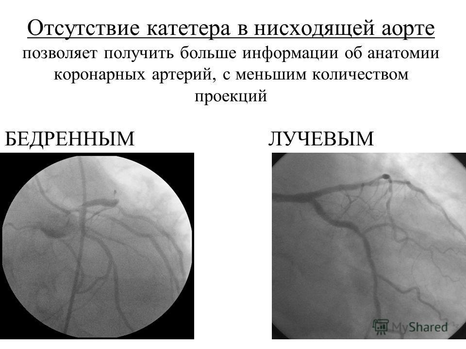 Отсутствие катетера в нисходящей аорте позволяет получить больше информации об анатомии коронарных артерий, с меньшим количеством проекций БЕДРЕННЫМ ЛУЧЕВЫМ
