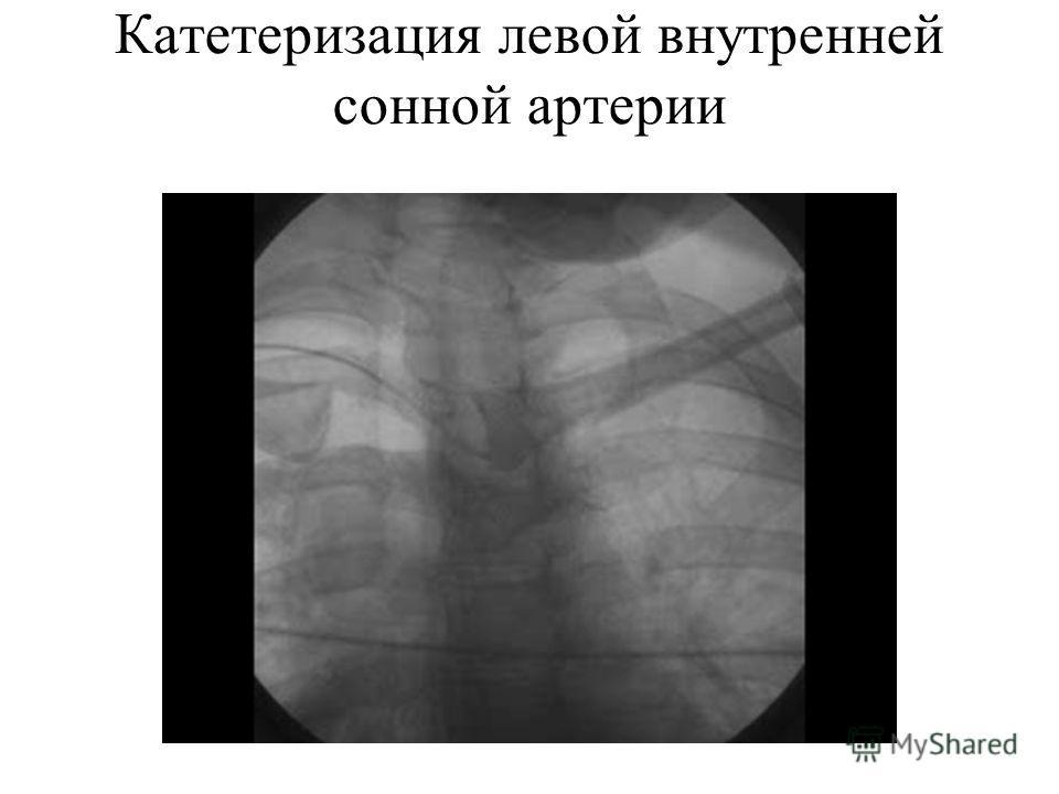 Катетеризация левой внутренней сонной артерии