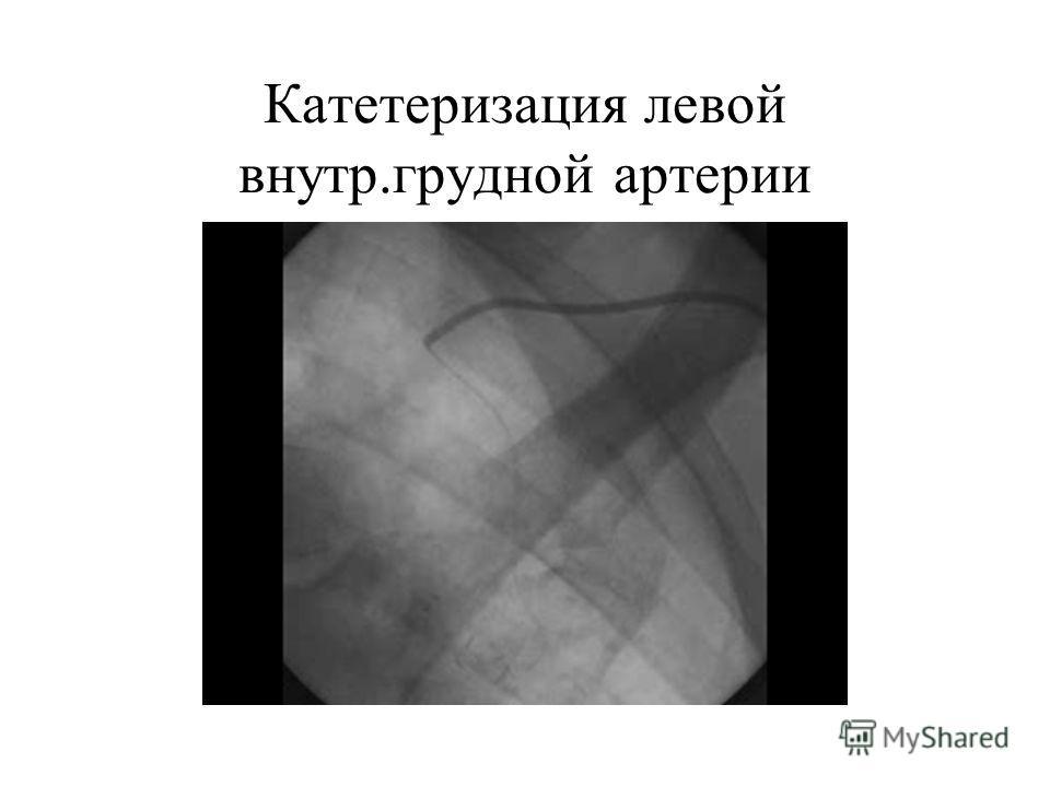 Катетеризация левой внутр.грудной артерии
