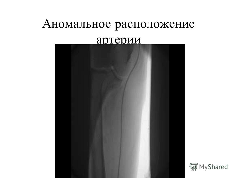 Аномальное расположение артерии