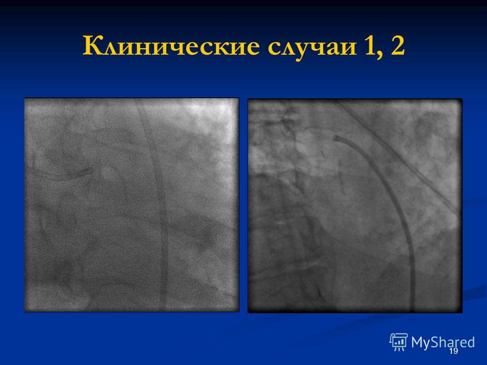 19 Клинические случаи 1, 2