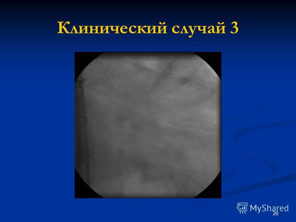 20 Клинический случай 3