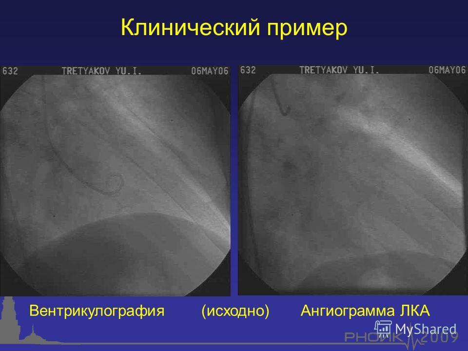 Клинический пример Вентрикулография (исходно) Ангиограмма ЛКА