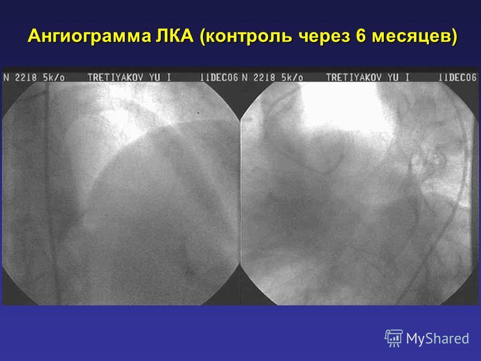 Ангиограмма ЛКА (контроль через 6 месяцев)