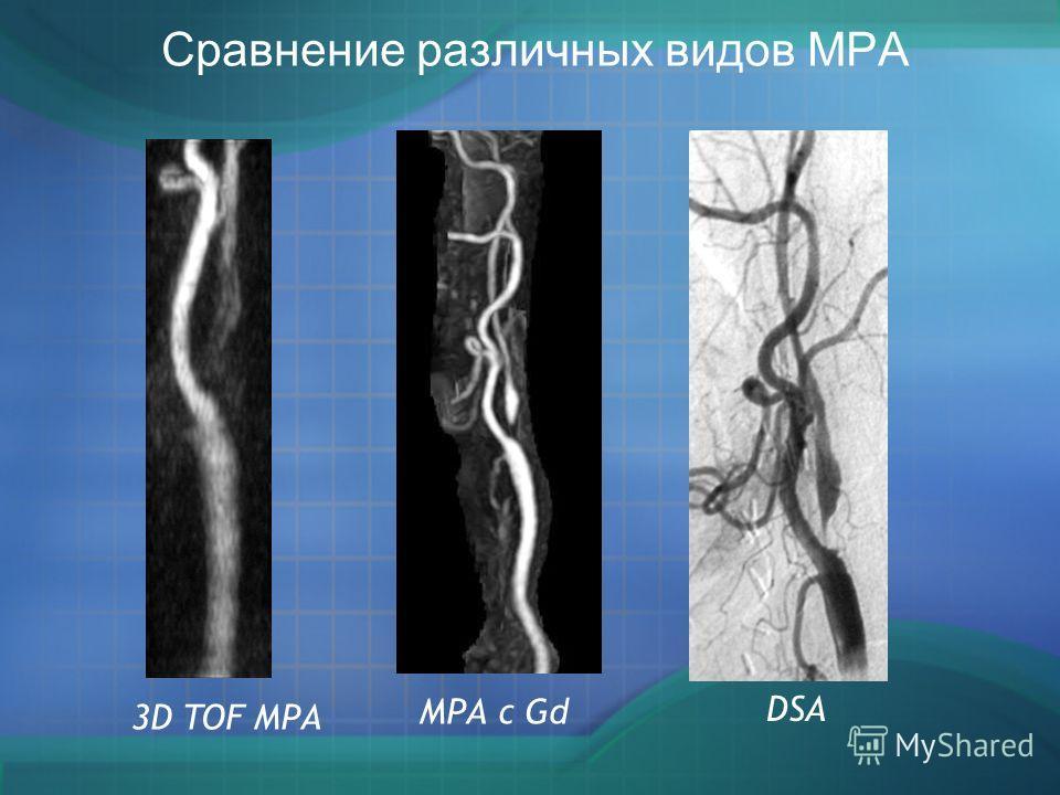 МРА с Gd 3D TOF МРА DSA Сравнение различных видов МРА