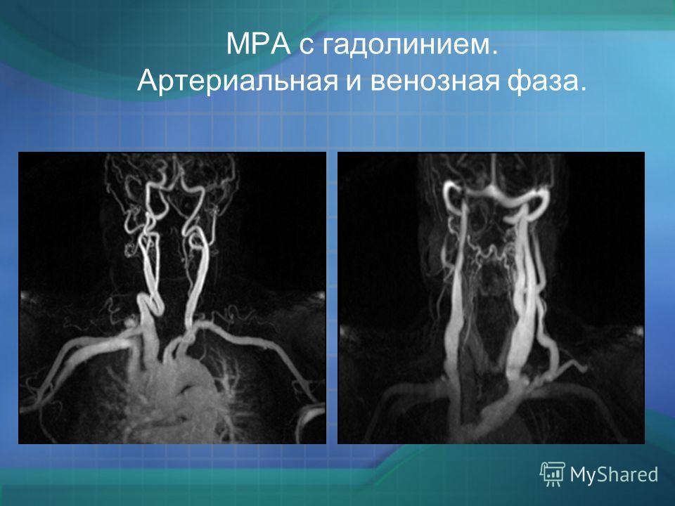 МРА с гадолинием. Артериальная и венозная фаза.