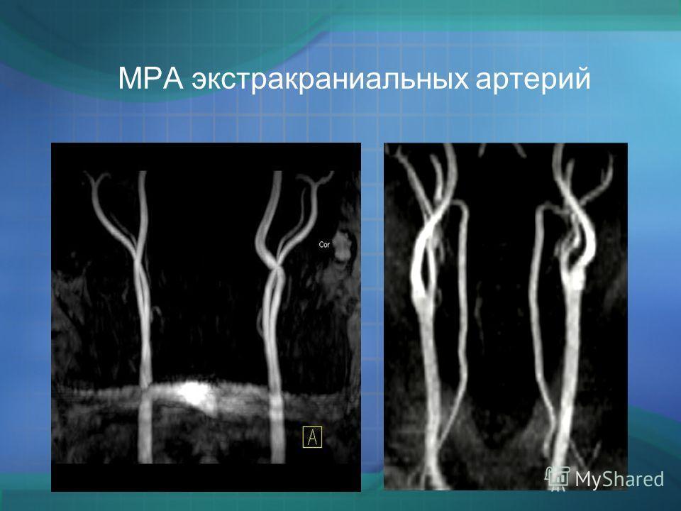 МРА экстракраниальных артерий