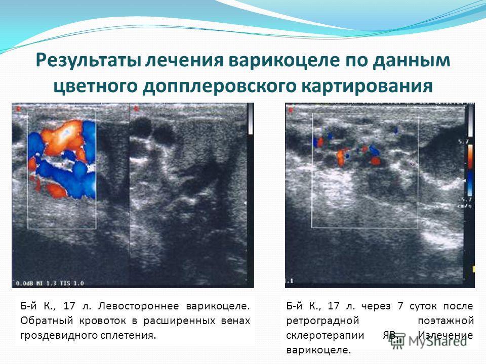 Б-й К., 17 л. Левостороннее варикоцеле. Обратный кровоток в расширенных венах гроздевидного сплетения. Б-й К., 17 л. через 7 суток после ретроградной поэтажной склеротерапии ЯВ. Излечение варикоцеле. Результаты лечения варикоцеле по данным цветного д