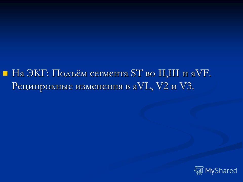 На ЭКГ: Подъём сегмента ST во II,III и aVF. Реципрокные изменения в aVL, V2 и V3. На ЭКГ: Подъём сегмента ST во II,III и aVF. Реципрокные изменения в aVL, V2 и V3.