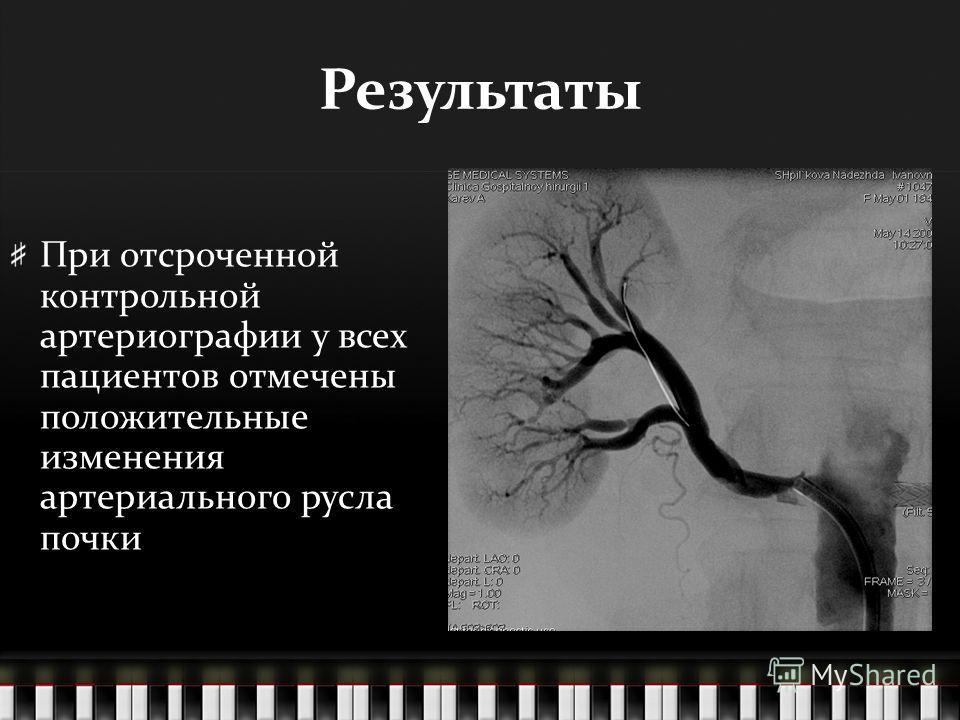 Результаты При отсроченной контрольной артериографии у всех пациентов отмечены положительные изменения артериального русла почки