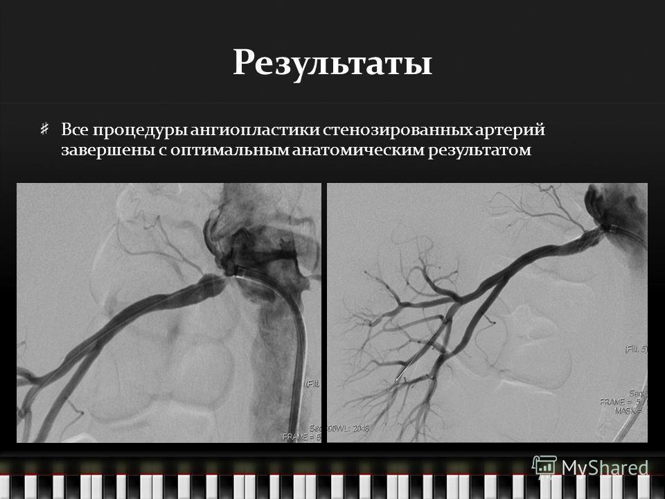 Результаты Все процедуры ангиопластики стенозированных артерий завершены с оптимальным анатомическим результатом