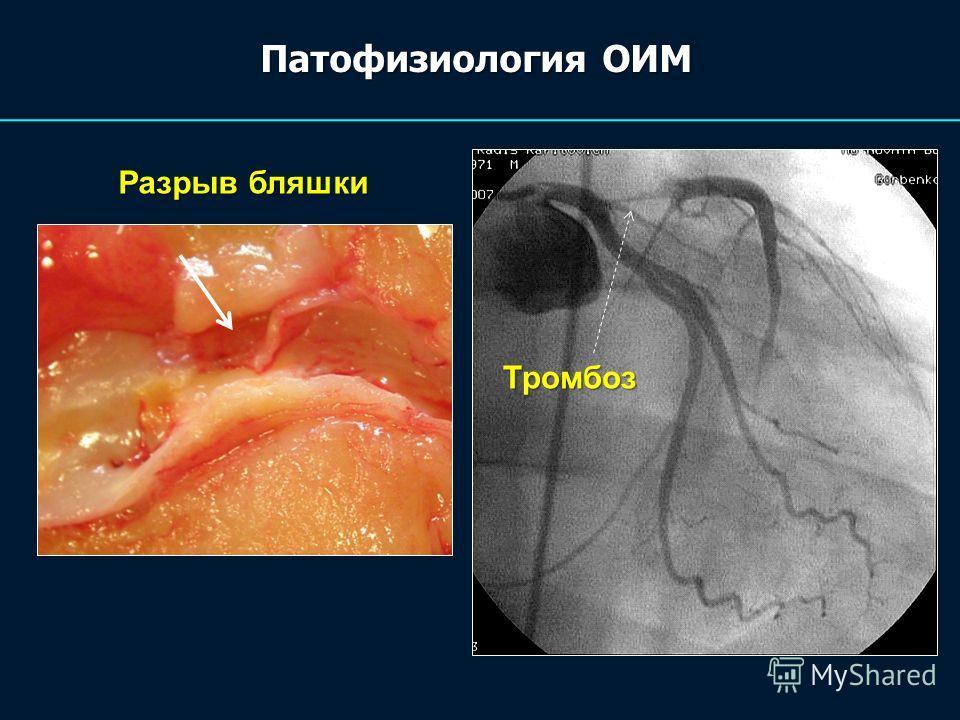 Патофизиология ОИМ Разрыв бляшки Тромбоз