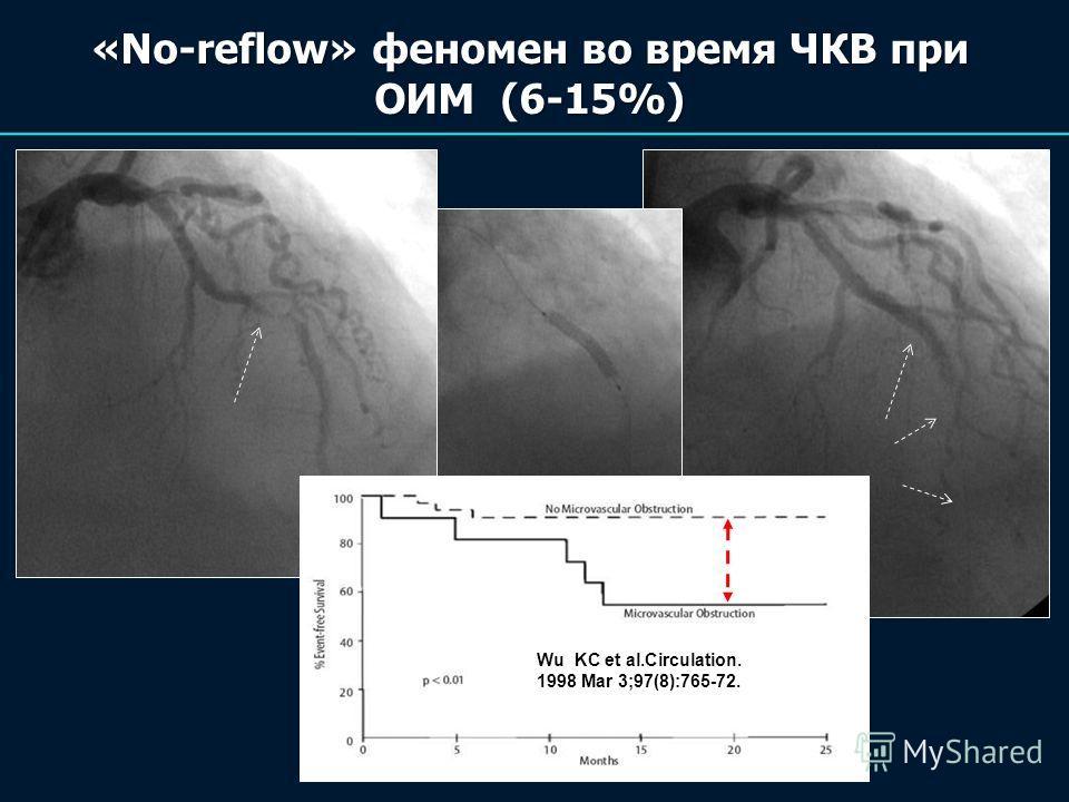 «No-reflow» феномен во время ЧКВ при ОИМ (6-15%) Wu KC et al.Circulation. 1998 Mar 3;97(8):765-72.