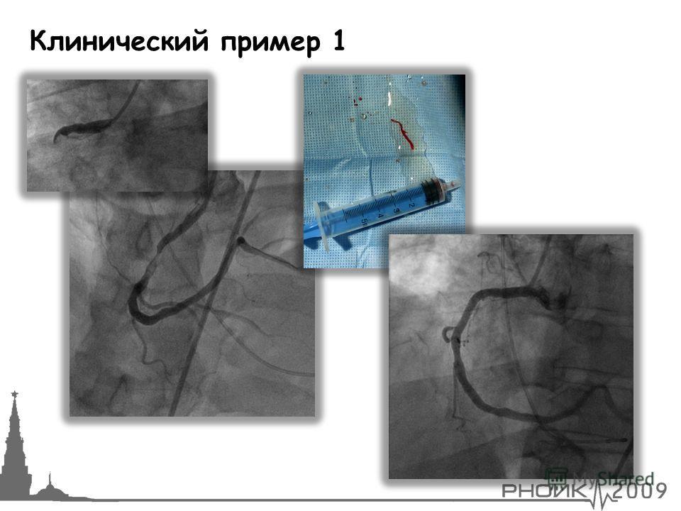 Клинический пример 1