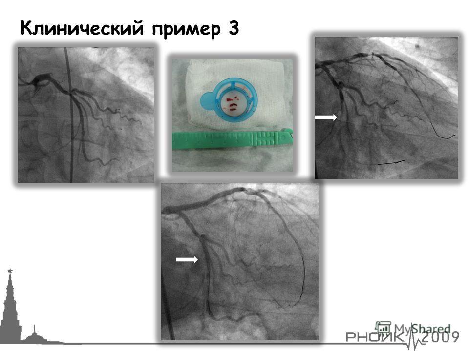 Клинический пример 3