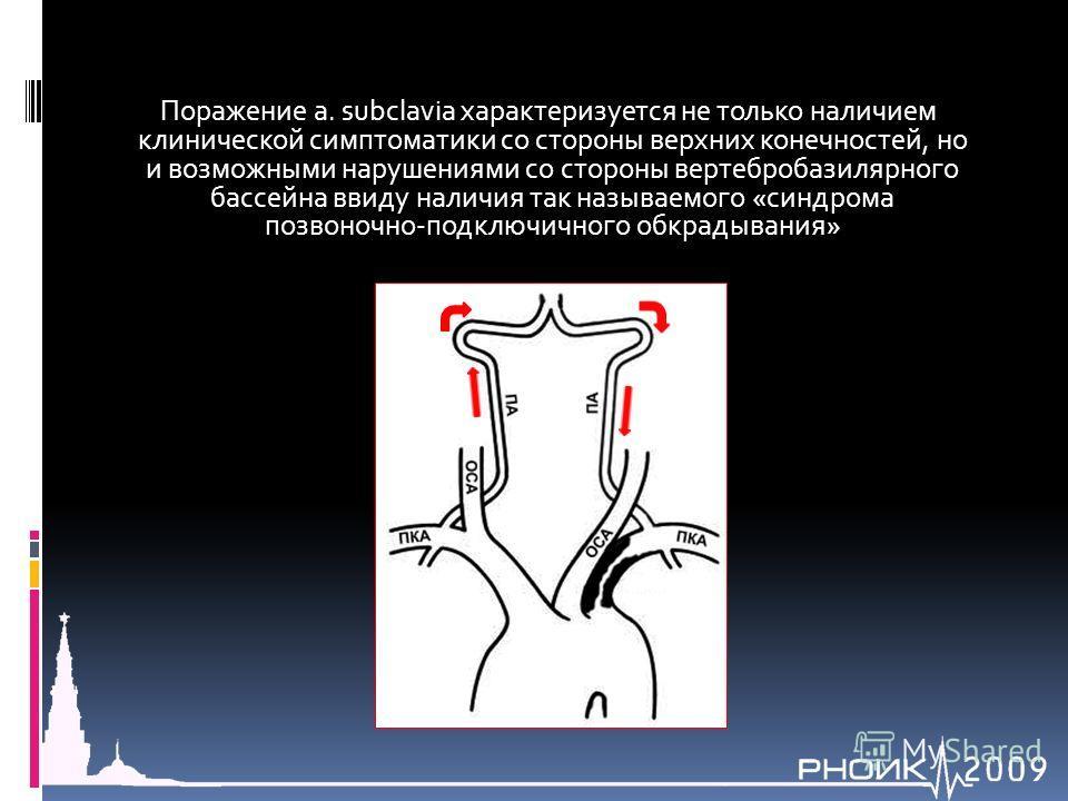 Поражение a. subclavia характеризуется не только наличием клинической симптоматики со стороны верхних конечностей, но и возможными нарушениями со стороны вертебробазилярного бассейна ввиду наличия так называемого «синдрома позвоночно-подключичного об