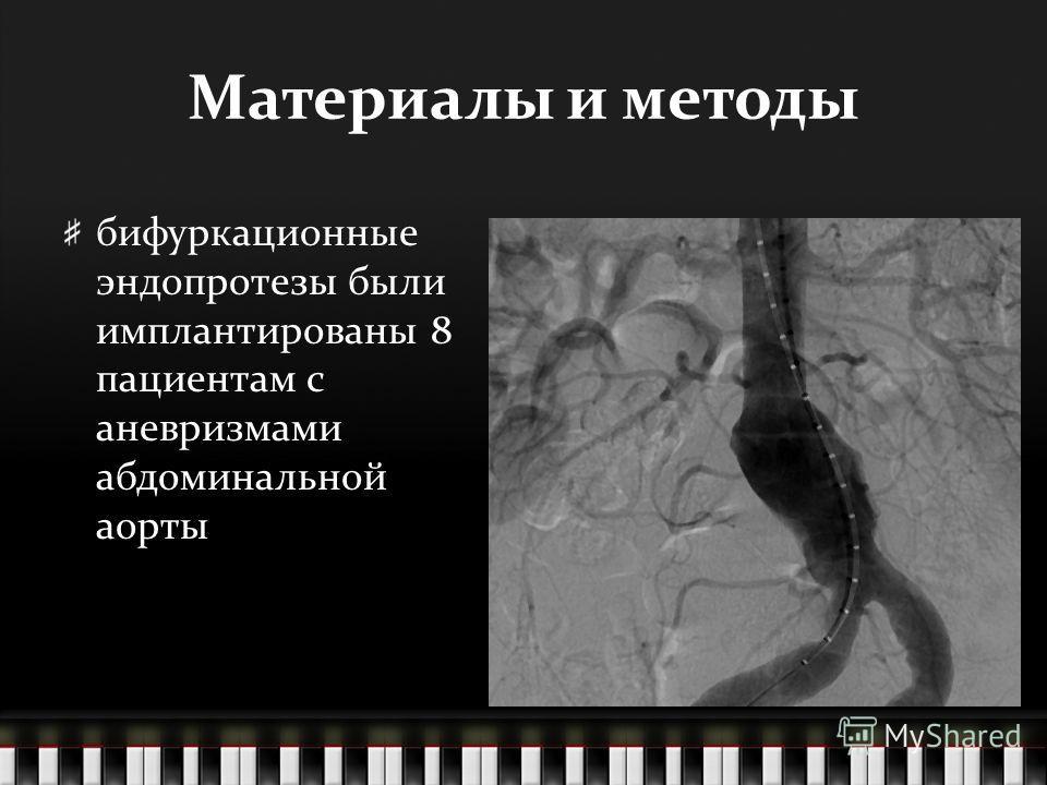 Материалы и методы бифуркационные эндопротезы были имплантированы 8 пациентам с аневризмами абдоминальной аорты