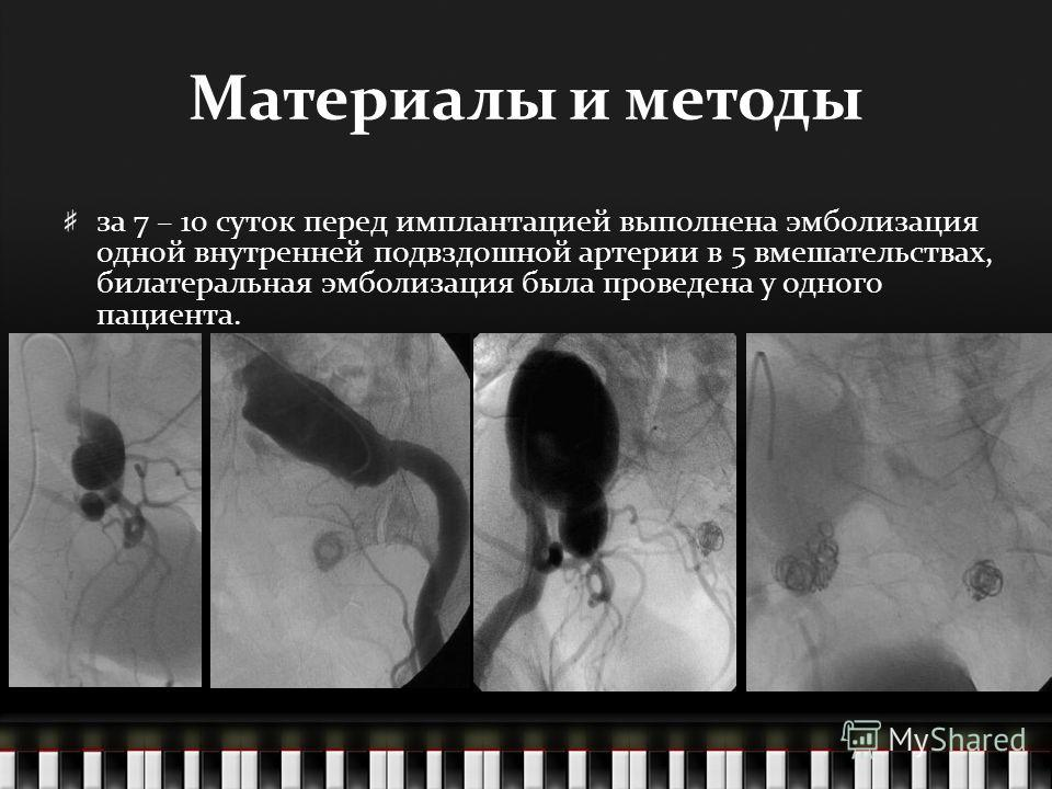 Материалы и методы за 7 – 10 суток перед имплантацией выполнена эмболизация одной внутренней подвздошной артерии в 5 вмешательствах, билатеральная эмболизация была проведена у одного пациента.