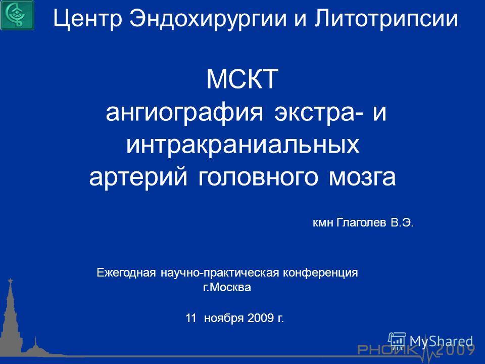 МСКТ ангиография экстра- и интракраниальных артерий головного мозга 11 ноября 2009 г. Центр Эндохирургии и Литотрипсии Ежегодная научно-практическая конференция г.Москва кмн Глаголев В.Э.