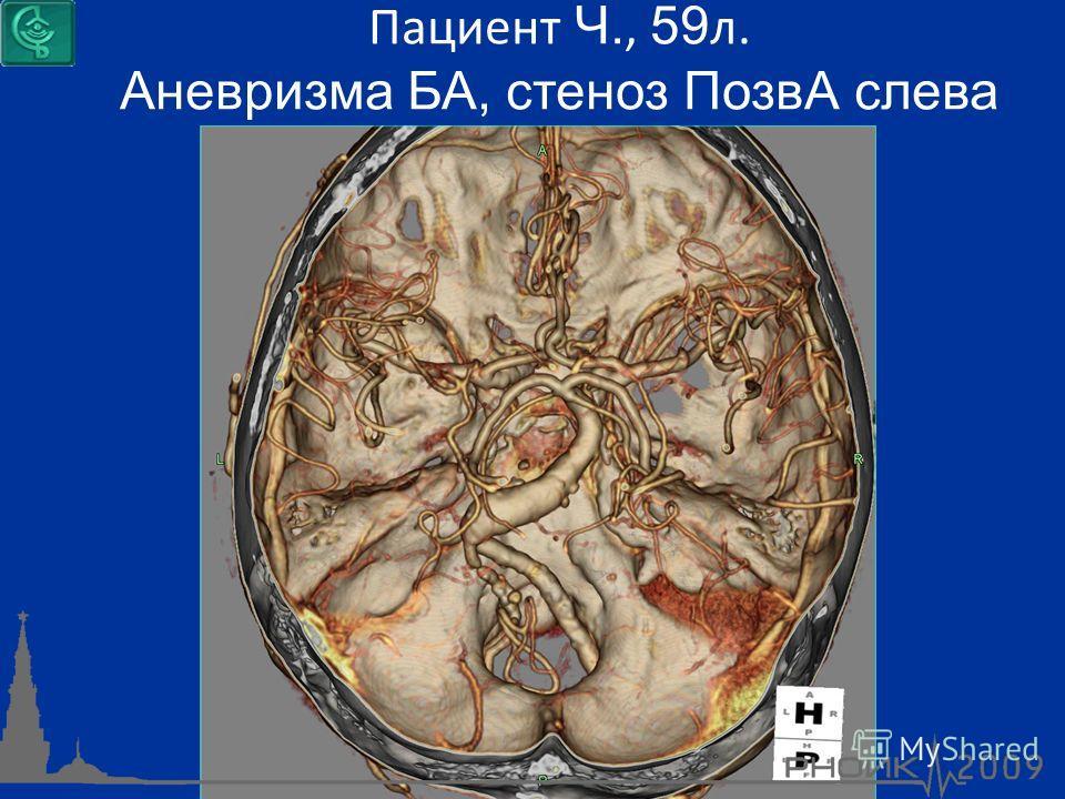 Пациент Ч., 59 л. Аневризма БА, стеноз ПозвА слева